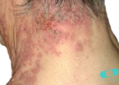 Bältros (herpes zoster) (12) nacke [ICD-10 B02]