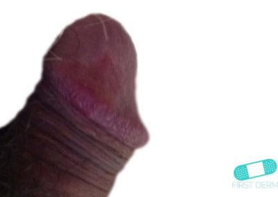 Balanit (förhudsproblem) (01) penis [ICD-10 N48.1]