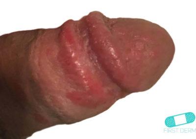 Balanit (förhudsproblem) (02) penis [ICD-10 N48.1]