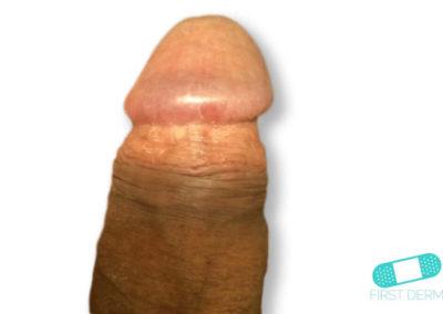 Balanit (förhudsproblem) (06) penis [ICD-10 N48.1]