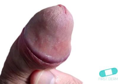 Balanit (förhudsproblem) (07) penis [ICD-10 N48.1]