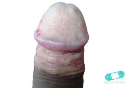 Balanit (förhudsproblem) (08) penis [ICD-10 N48.1]