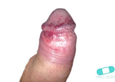 Balanit (förhudsproblem) (10) penis [ICD-10 N48.1]