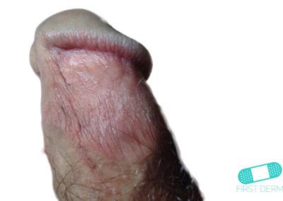 Balanit (förhudsproblem) (12) penis [ICD-10 N48.1]