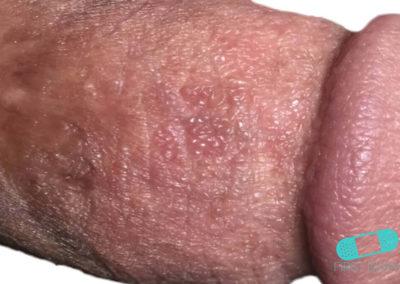 Balanit (förhudsproblem) (13) penis [ICD-10 N48.1]