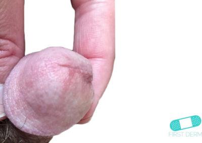 Balanit (förhudsproblem) (15) penis [ICD-10 N48.1]