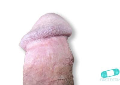 Balanit (förhudsproblem) (17) penis [ICD-10 N48.1]