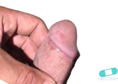 Balanit (förhudsproblem) (19) penis [ICD-10 N48.1]