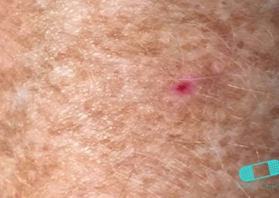 Basal cell carcinoma (Basal cell skin cancer, BCC) (02) chest [ICD-10 C44.91]