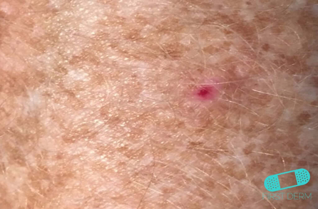 What does basal cell carcinoma bcc look like