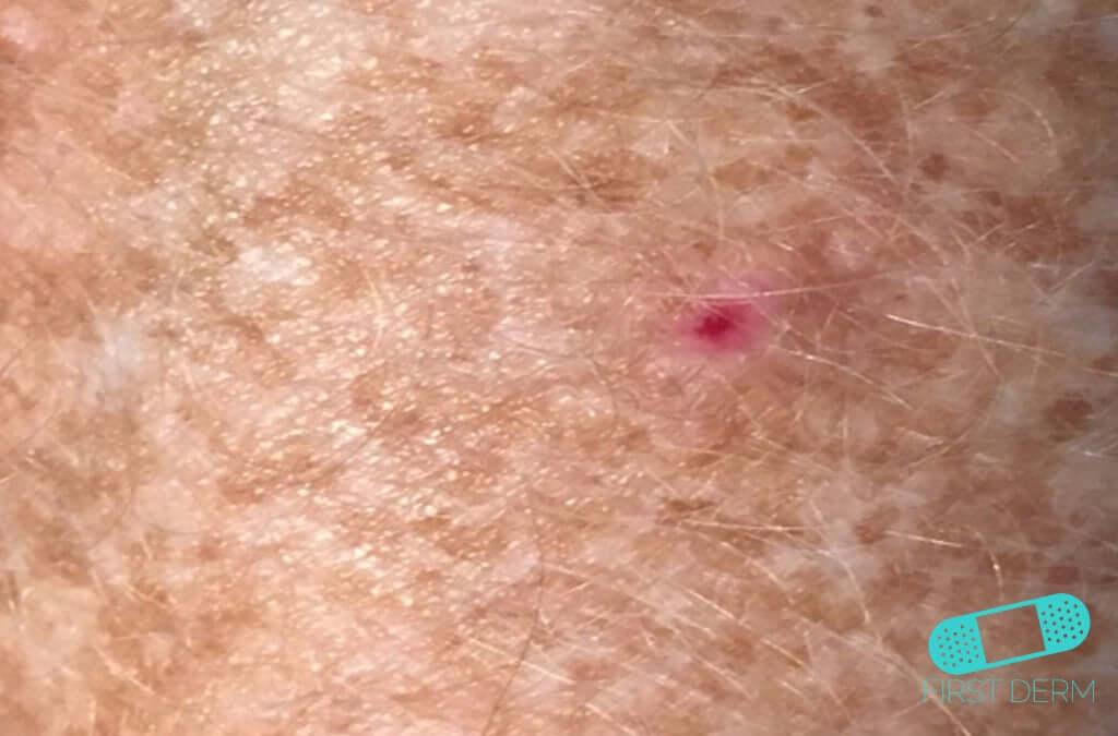 Basal Cell Carcinoma Basalioma Bcc Online Dermatology