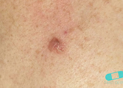 Basal cell carcinoma (Basal cell skin cancer, BCC) (08) breast [ICD-10 C44.91]