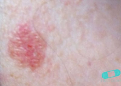 Basal cell carcinoma (Basal cell skin cancer, BCC) (13) chin [ICD-10 C44.91]