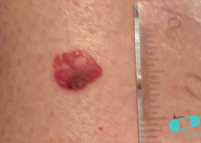 Basal cell carcinoma (Basal cell skin cancer, BCC) (16) trunk [ICD-10 C44.91]
