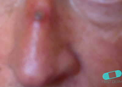 Basal cell carcinoma picture basalioma, BCC) high quality on nose [ICD-10 C44.91]