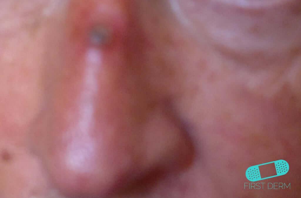 sår i näsan som inte läker cancer