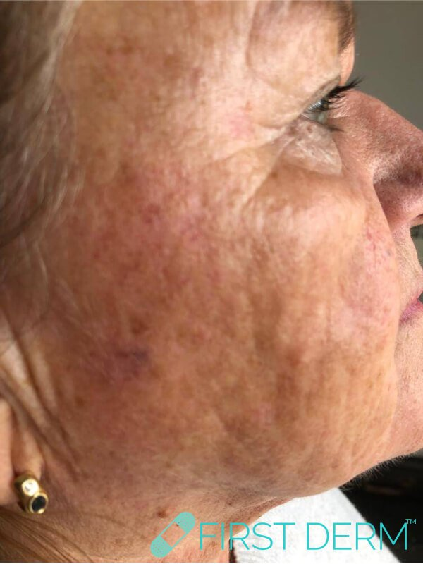 Best Senile warts (Seborrheic Keratosis) treatment face after close up