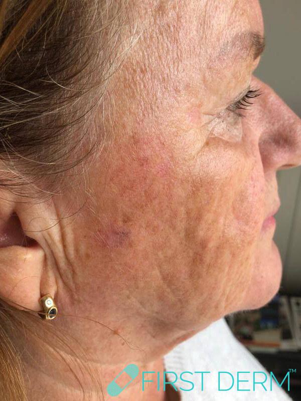 Best Senile warts (Seborrheic Keratosis) treatment face after