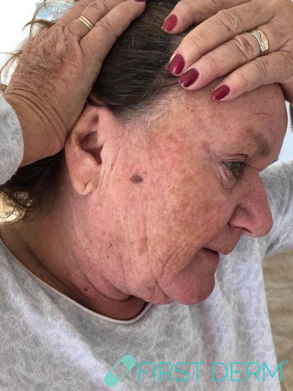 Best Senile warts (Seborrheic Keratosis) treatment face before