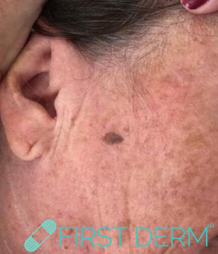 Best Senile warts (Seborrheic Keratosis) treatment face close up before