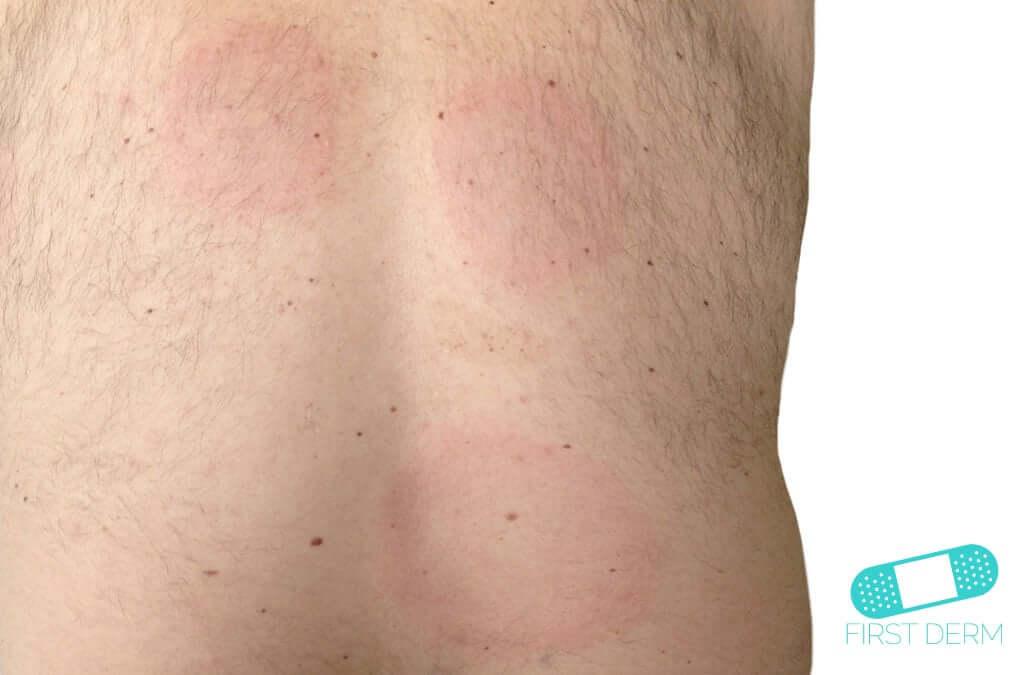 borrelia symptom människa