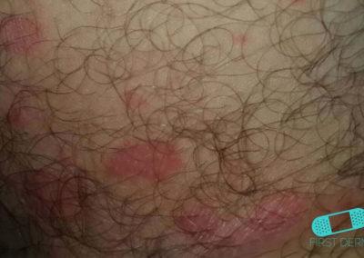 Candidiasis estomago (03) piel [ICD-10 L02.91]