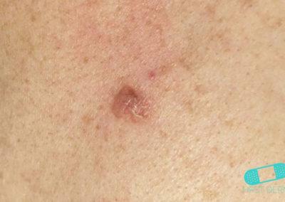Carcinoma de Células Basales (Basalioma) (08) piel [ICD-10 C44.91]