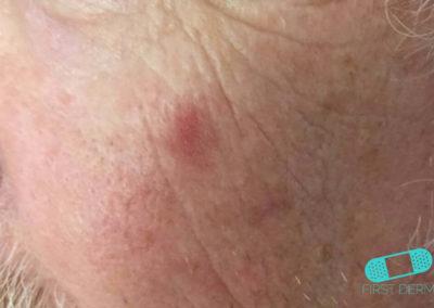 Carcinoma de Células Escamosas (05) mejilla [ICD-10 C44.92]