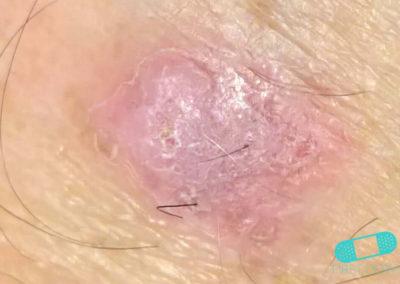 Carcinoma de Células Escamosas (07) pierna [ICD-10 C44.92]