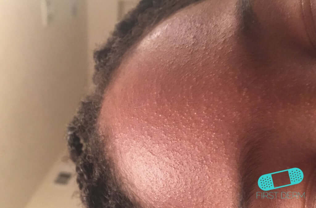 Comedones (07) forehead [ICD-10 L70.0]