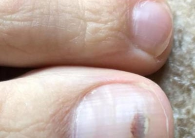 Common nail discoloration Subungual Hematoma (Blood Under Nail)