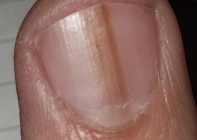 Common nail discoloration melanonychia