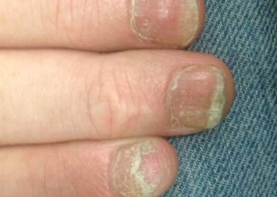 Common nail discoloration nail dystrophy