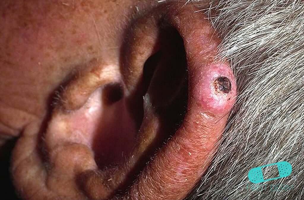 Condrodermatitis Nodular del Hélix (01) oreja [ICD-10 H61.039]