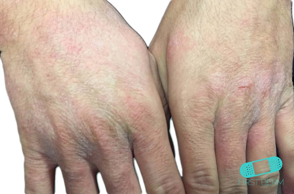 Contact Dermatitis (04) hand [ICD-10 L25.9]