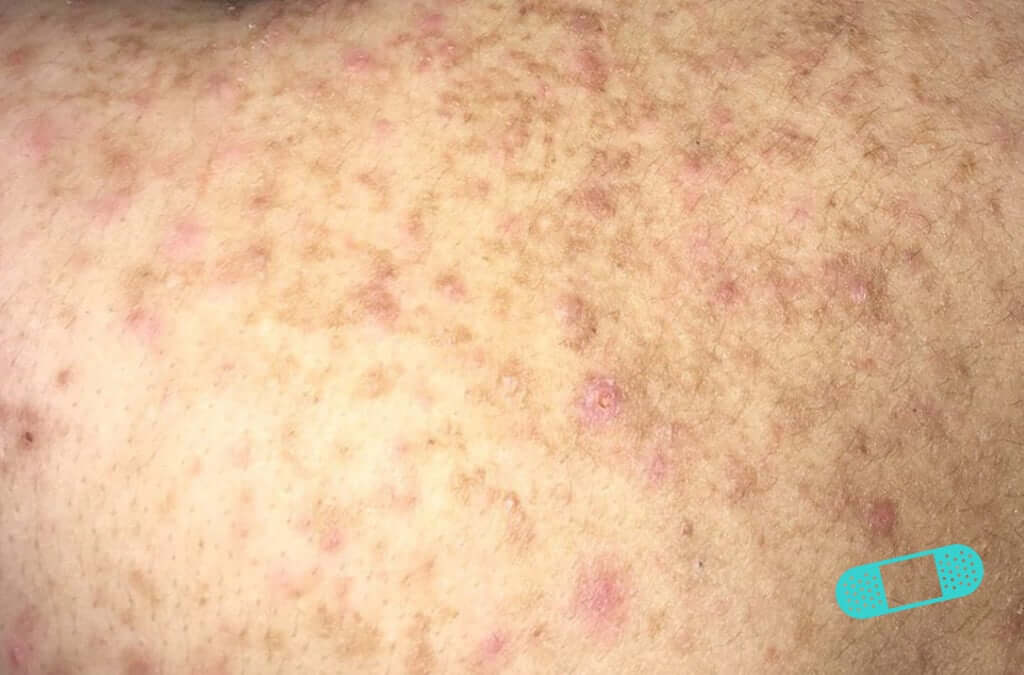 Contact Dermatitis (07) skin [ICD-10 L25.9]