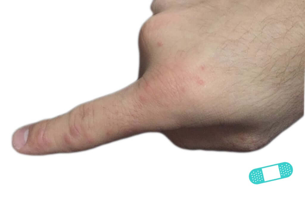 Contact Dermatitis (13) finger hand [ICD-10 L25.9]