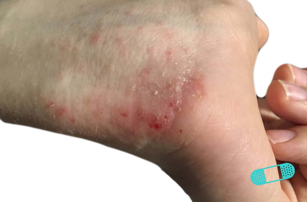 Contact Dermatitis (15) hand wrist [ICD-10 L25.9]