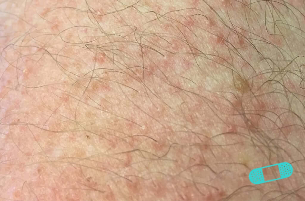 Contact Dermatitis (18) skin [ICD-10 L25.9]