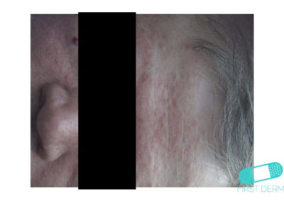 Costra Láctea (Dermatitis Seborreica) (03) frente [ICD-10 L21.0]