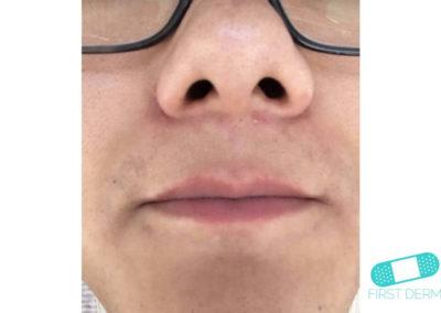 Costra Láctea (Dermatitis Seborreica) (11) mentón [ICD-10 L21.0]
