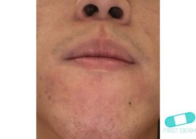 Costra Láctea (Dermatitis Seborreica) (12) mentón [ICD-10 L21.0]