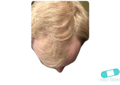 Costra Láctea (Dermatitis Seborreica) (15) cuero cabelludo [ICD-10 L21.0]