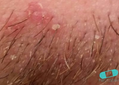 Costra Láctea (Dermatitis Seborreica) (16) cuero cabelludo [ICD-10 L21.0]