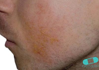 Costra Láctea (Dermatitis Seborreica) (18) mejilla [ICD-10 L21.0]