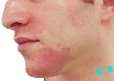 Costra Láctea (Dermatitis Seborreica) (19) mentón [ICD-10 L21.0]