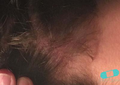 Costra Láctea (Dermatitis Seborreica) (20) cuero cabelludo [ICD-10 L21.0]