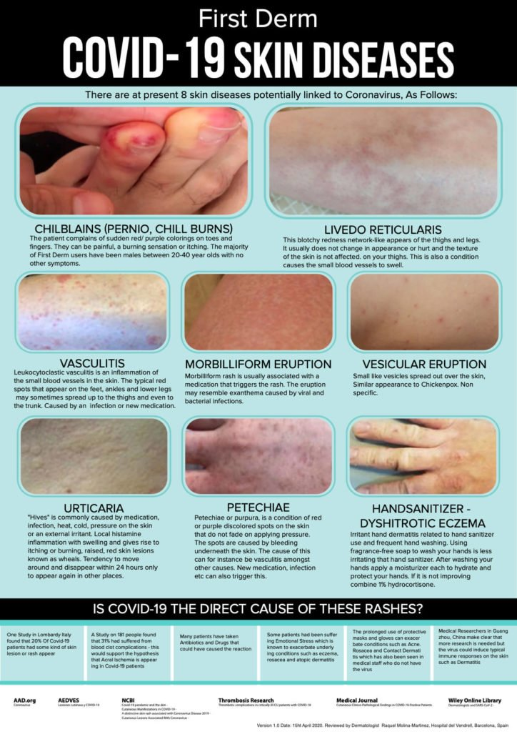 Infographic of Covid-19 associated skin diseases