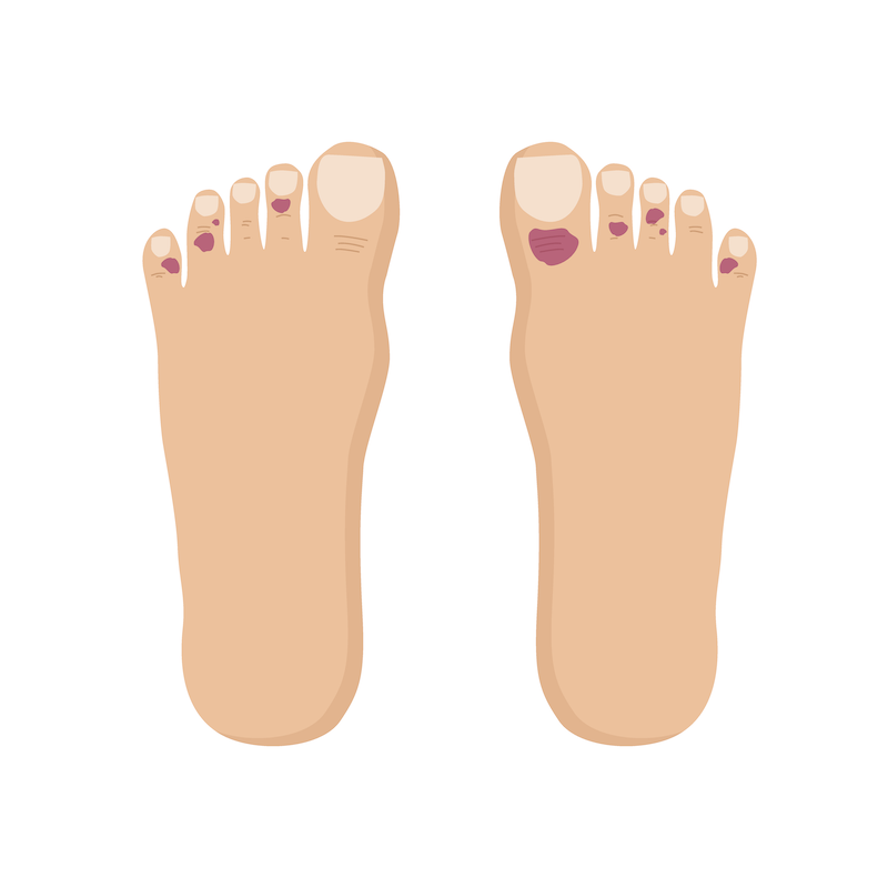 covid-toes-rash