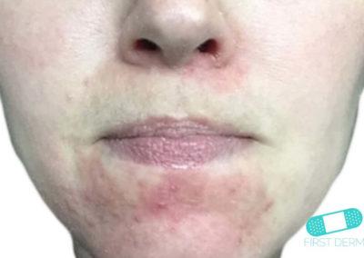 Dermatitis Perioral (02) mentón [ICD-10 L71.0]